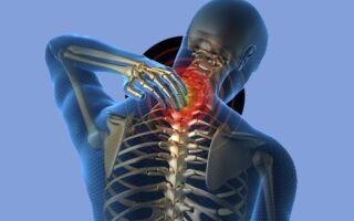 Нестабильность шейного отдела позвоночника: характеристика заболевания