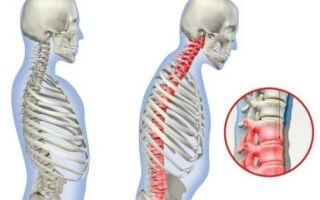 Что такое болезнь Кюммеля (асептический спондилит спины)
