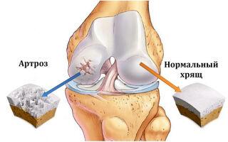 Что такое артроз дугоотрастчатых суставов поясничного отдела позвоночника?