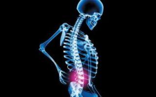Эффективные способы лечения дискогенного радикулита