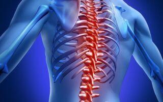 Смещение шейных позвонков: симптомы, лечение