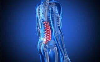 3 возможных осложнения болезни Форестье — как лечить?