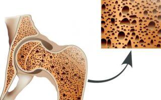 3 степени остеопороза тазобедренного сустава. Чем опасно и как лечить?
