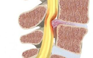 Лечение заболеваний седалищного нерва