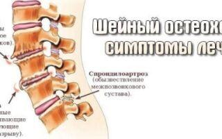 Лучшие уколы при остеохондрозе шейного отдела позвоночника