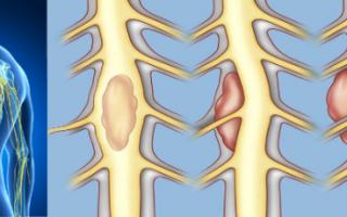 Интрамедуллярная и экстрамедуллярная опухоль спинного мозга — прогноз и лечение