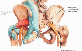 Лечение седалищного нерва: народные методы, рецептура