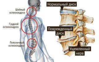 К какому врачу обратиться с остеохондрозом позвоночника