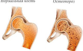 К какому врачу обращаться для лечения остеопороза?