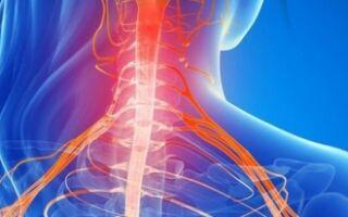 5 признаков миелопатии — что за болезнь и почему трудно поддаётся лечению?