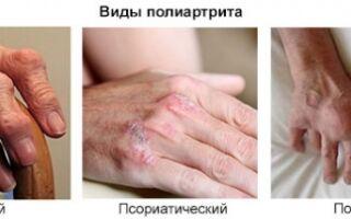 Полная характеристика полиартрита суставов: причины, симптомы и лечение