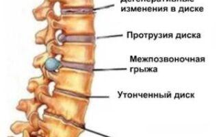 Зарядка при остеохондрозе: зачем назначается и как ее делать?