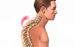 Причины, симптомы и методы лечения кифоза грудного отдела позвоночника