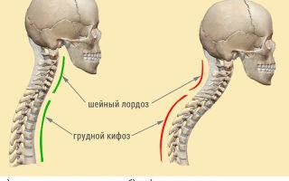 Шейный лордоз: диагностика, причины и симптомы