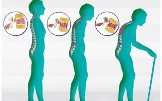 Гимнастика при остеохондрозе шейного отдела позвоночника