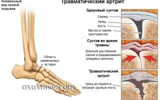 Симптомы и лечение артрита голеностопного сустава, стадии, 7 видов