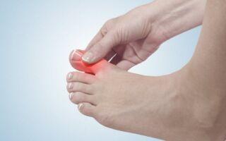 Что делать, если воспалилась косточка на ноге у большого пальца?