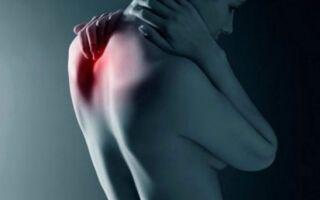 Обзор медикаментозных средств для лечения шейного остеохондроза