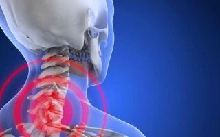 Остеохондроз: обезболивающие препараты и антидепресанты