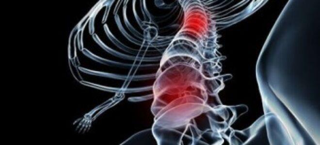 Синдром Броун-Секара – поражение половины поперечника спинного мозга