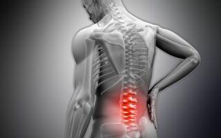 Остеосклероз позвоночника — 3 вида заболевание и причины возникновения