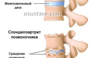 Полный обзор серонегативного спондилоартрита: причины, диагностика и лечение