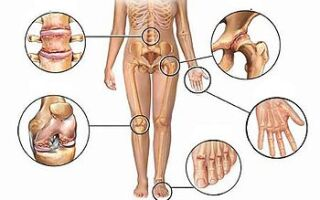 Ревматический артрит: симптомы, лечение