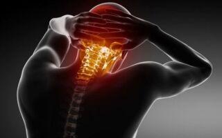 Невралгия шейного отдела — 6 симптомов и лечение