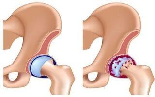 Лечение коксартроза 3 степени без операции: когда его применяют, результативность