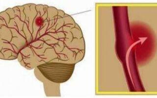 Диагностика геморрагического инсульта левой стороны, последствия и сколько живут пациенты?