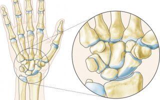Анатомия лучезапястного сустава