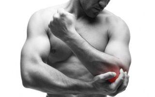 Лечение эпикондилита локтевого сустава народными средствами