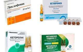 Какие уколы ставят при артрите: НПВС, глюкокортикоиды, имунодепрессанты и другие