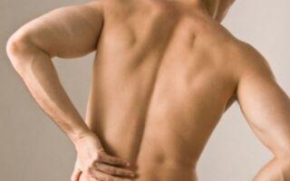 Воспаление седалищного нерва: лечение, причины