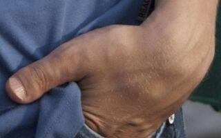 Что такое брахидактилия большого пальца и почему она возникает?