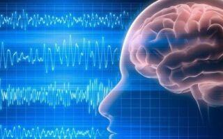 Электроэнцефалограмма головного мозга: что показывает, расшифровка результатов