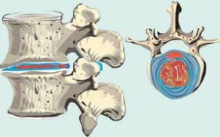 Симптомы, причины и методы лечения протрузии шейного отдела позвоночника