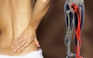 Как лечить защемление седалищного нерва в домашних условиях