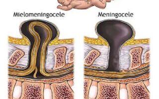 Спинномозговая грыжа: основные методы лечения заболевания