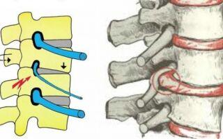 Таблицы симптомов корешковый синдрома (радикулопатии) для каждого позвонка.