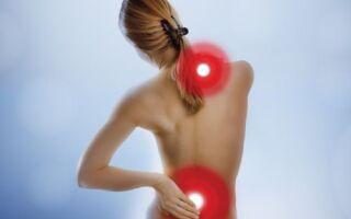 Периневральная киста: симптомы, лечение, рекомендации