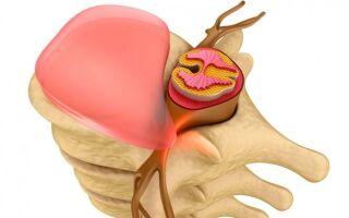 Особенности эндоскопической операции по удалению грыжи позвоночника