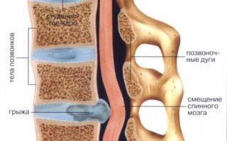 Межпозвоночная грыжа пояснично-крестцового отдела позвоночника