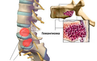 Как лечить гемангиому грудного отдела позвоночника?