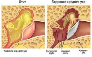 Боль при глотании отдает в ухо – что это может быть?