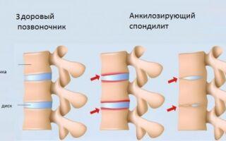 Что такое спондилодисцит позвоночника — 4 осложнения, которые могут привести к инвалидности