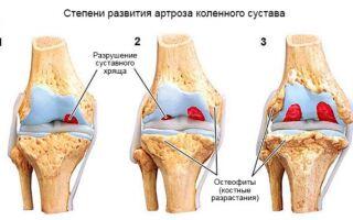 Обзор артроза коленного сустава 2 степени: особенности, симптомы и лечение