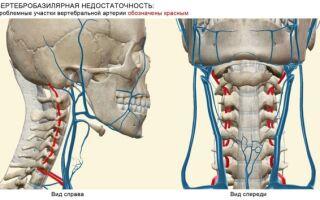 Вертебро-базилярная недостаточность на фоне шейного остеохондроза: симптомы и лечение