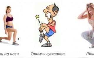 Код по мкб деформирующий остеоартроз тазобедренного сустава