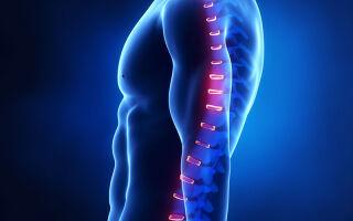 Остеохондроз пояснично-крестцового отдела позвоночника: подробно о симптоматике, диагностике и лечение.